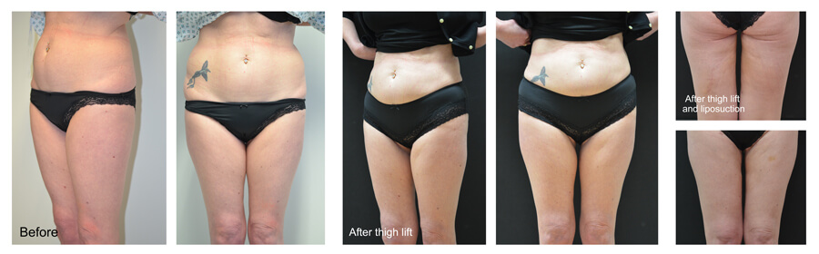 Thigh-lift-lipo_steph-edit
