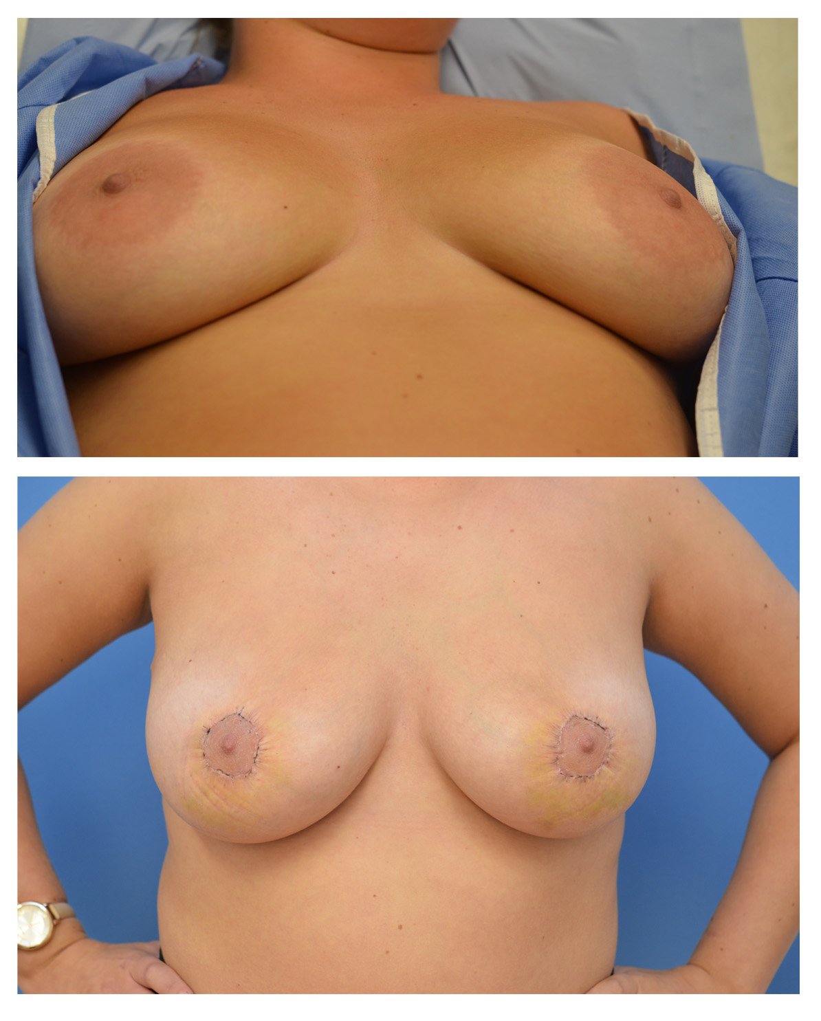 Areola-Montage-1